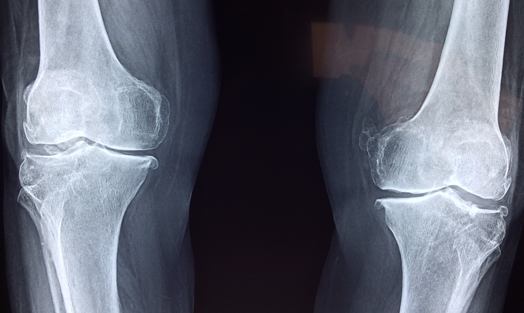 Managing Athletes with Osgood Schlatter's Disease